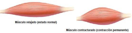 contractura-muscular-2